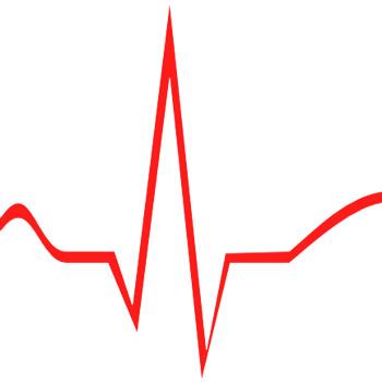 مقاله حذف سیگنال الکتروکاردیوگرام EMG
