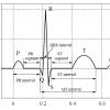 استخراج ویژگی های سیگنال ECG قلب با متلب