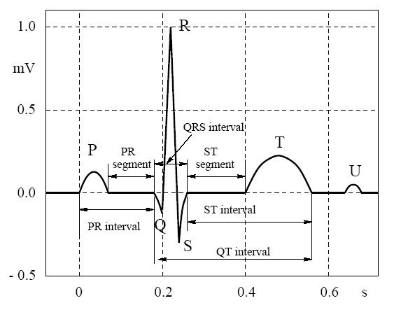 شکل موج ECG