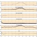 نتایج شبیه سازی کنترل موتور القایی قطار برقی
