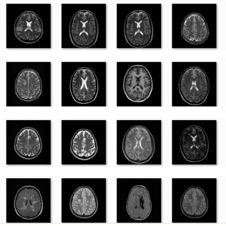 پروژه تشخیص تومور مغزی توسط مدل مخفی مارکوف با متلب