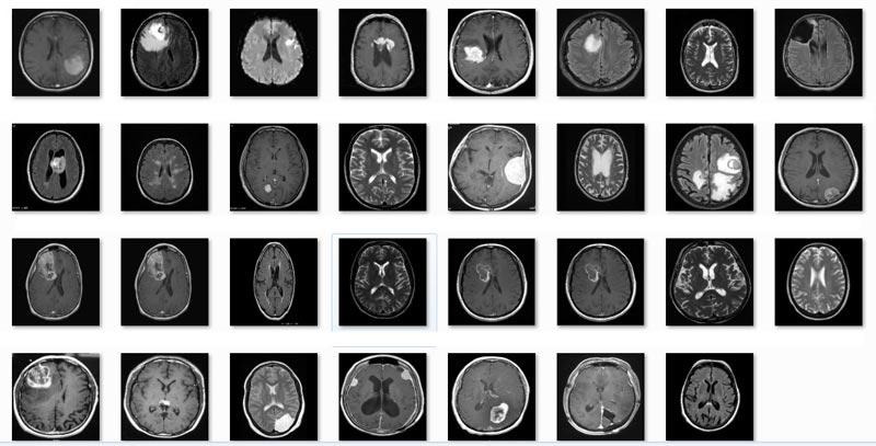 پروژه-تشخیص-تومور-مغزی-توسط-مدل-مخفی-مارکوف-با-متلب