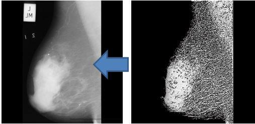 پروژه شناسایی تصاویر ماموگرافی سرطان پستان با شبکه عصبی