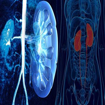 سیستم های خبره در تشخیص بیماری ارولوژی