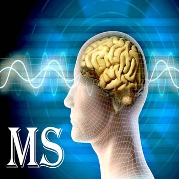 تحقیق بررسی وضعیت جسمی و روحی در بیماران MS