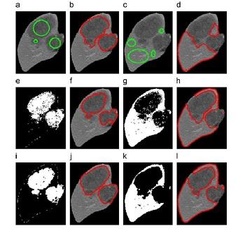 شبیه سازی مقاله خوشه بندی فازی تصاویر پزشکی با متلب