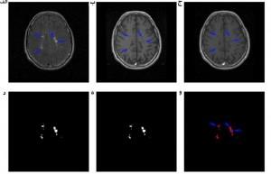 تشخیص ضایعه MS در تصاویر MRI مغز با استفاده از پردازش تصویر و شبکه عصبی مصنوعی با متلب