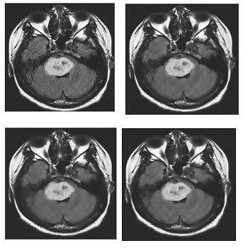 شبیه سازی کاهش نویز تصاویر MRI با استفاده از فیلتر وینر با متلب