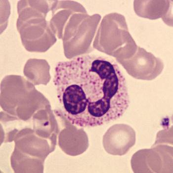 بالانس و یکسان سازی تصاویر میکروسکوپی خون با متلب