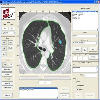 تحقیق کاربرد نرم افزار متلب در سیستم های تصویرگر پرتوپزشکی