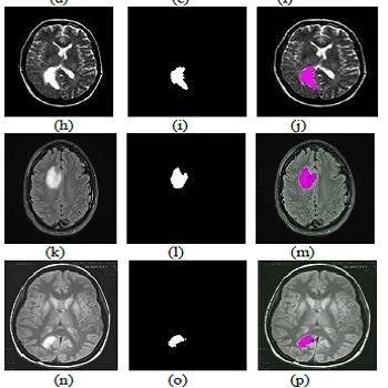شبیه سازی مقاله تقسیم بندی تصاویر MRI برای تعیین تومور مغزی توسط الگوریتم ژنتیک با متلب
