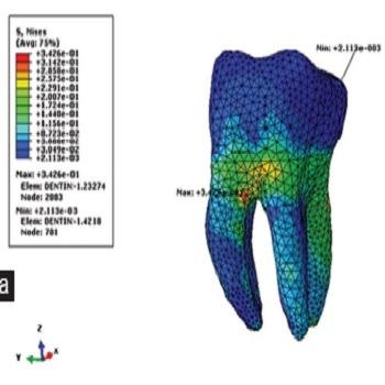 مدلسازی و تحلیل دندان با آباکوس