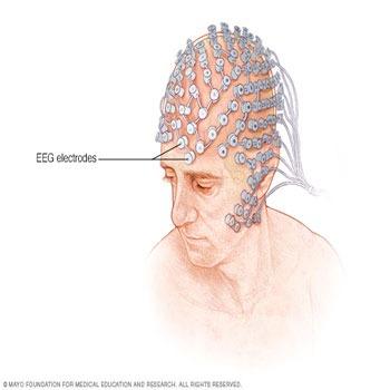 ترجمه تشخیص بهبود یافته تأخیر های کوتاه در برانگیختگی موتوری در نرم افزار رابط رایانه و مغز EEG حلقه بسته