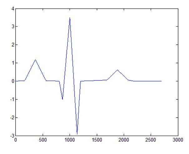 شبیه سازی مقاله حذف نویز الکتروکاردیوگرام (ECG) با فیلتر تطبیقی با متلب