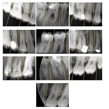 پروژه تشخیص پوسیدگی دندان به کمک پردازش تصویر با متلب